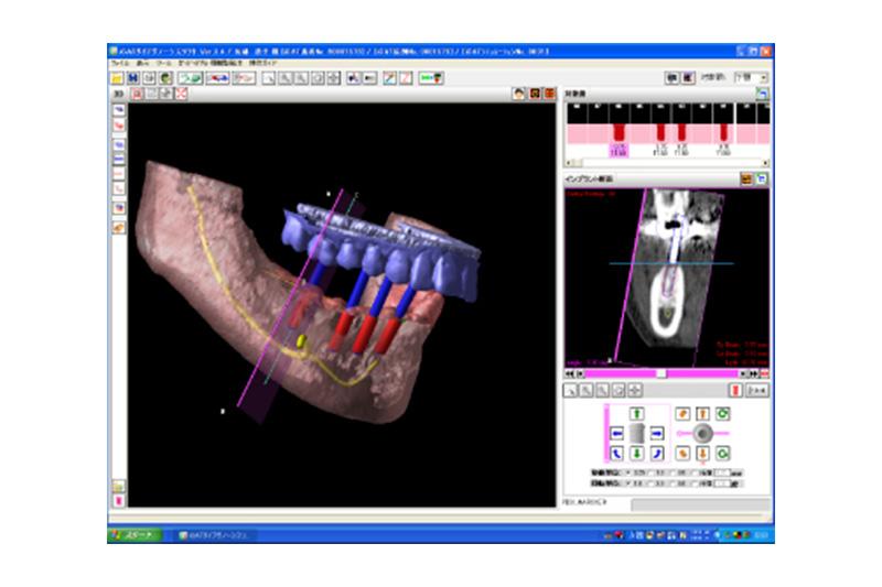 インプラント埋入シミュレーションソフト