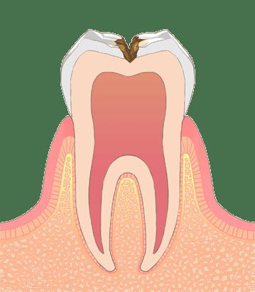 虫歯の進行度合いについて